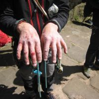 The Presidential hands after 2 days (and half a night) on grit (Roger Dyke)